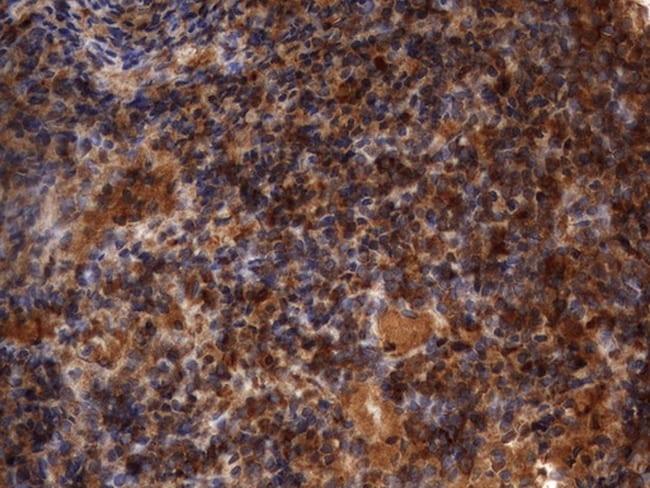 HMBS Antibody in Immunohistochemistry (Paraffin) (IHC (P))