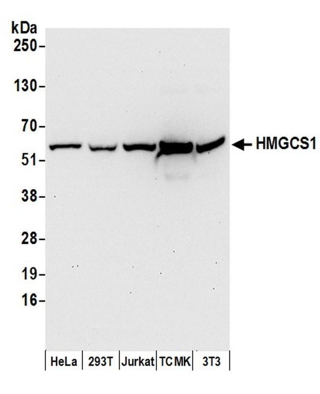 HMGCS1 Antibody in Western Blot (WB)