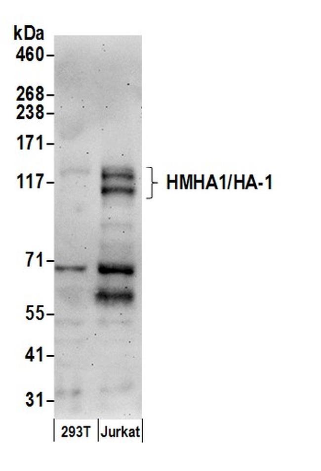 HMHA1/HA-1 Antibody in Western Blot (WB)
