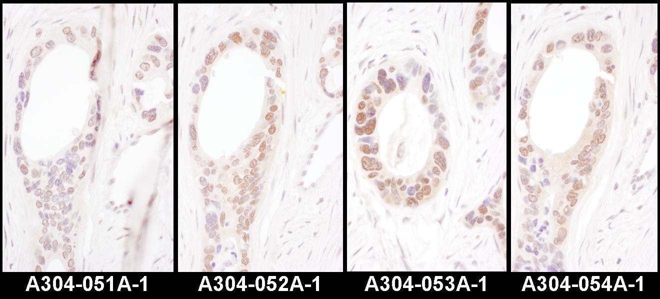HNF1-alpha Antibody in Immunohistochemistry (IHC)
