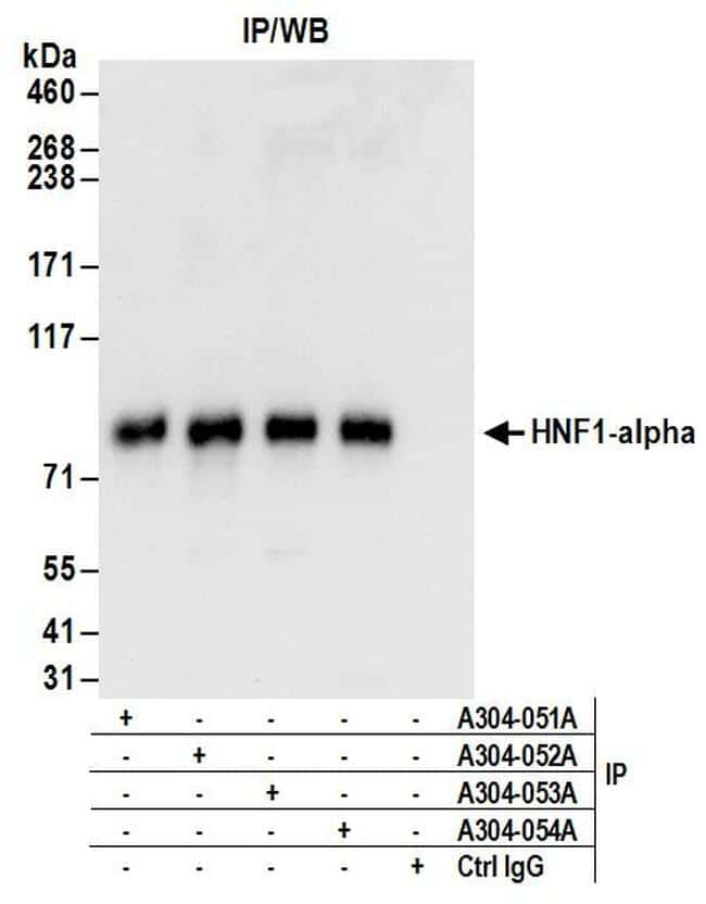 HNF1-alpha Antibody in Immunoprecipitation (IP)