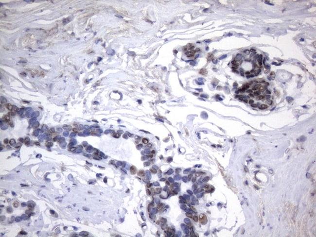 HNRNPA0 Antibody in Immunohistochemistry (Paraffin) (IHC (P))