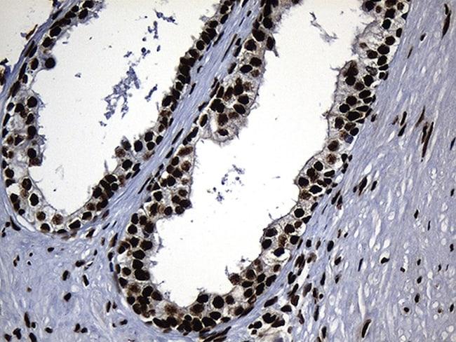 HNRNPH1 Antibody in Immunohistochemistry (Paraffin) (IHC (P))