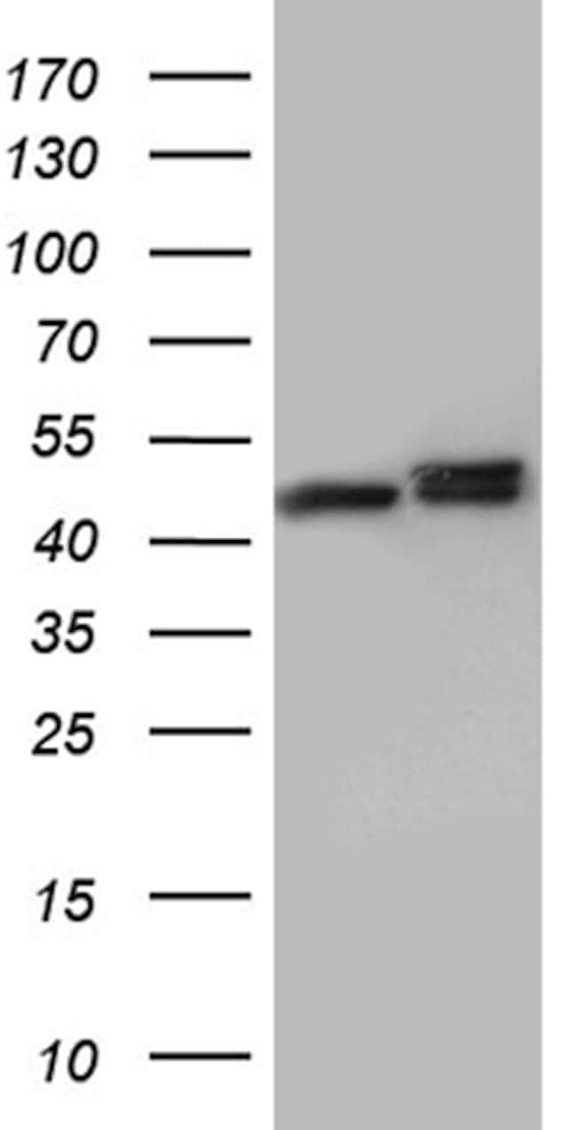 HNRNPH1 Antibody in Western Blot (WB)