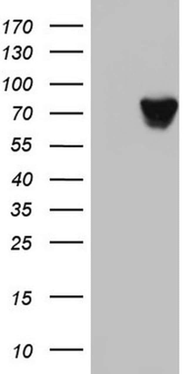 HNRNPM Antibody in Western Blot (WB)