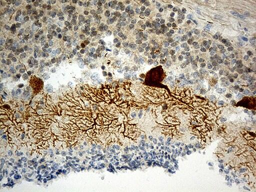 HOMER1 Antibody in Immunohistochemistry (Paraffin) (IHC (P))