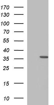 HORMAD2 Antibody in Western Blot (WB)