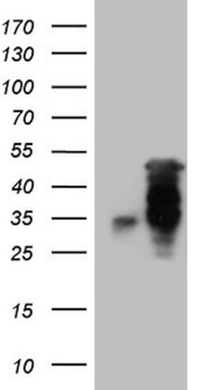 HOXC10 Antibody in Western Blot (WB)