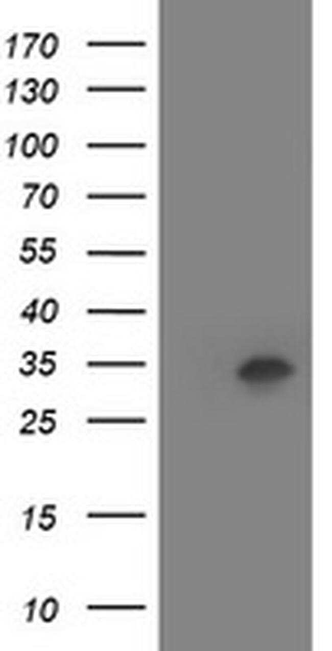 HOXC11 Antibody in Western Blot (WB)