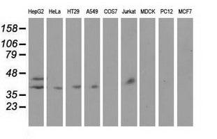 HP Antibody in Western Blot (WB)