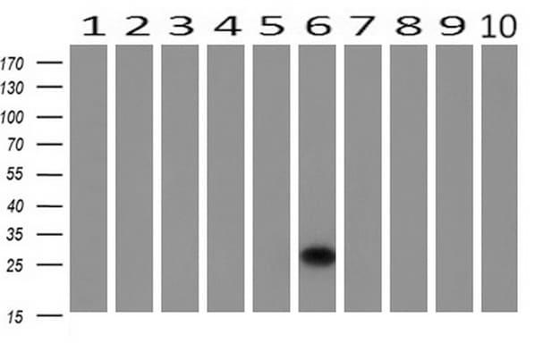 HPGD Antibody in Western Blot (WB)