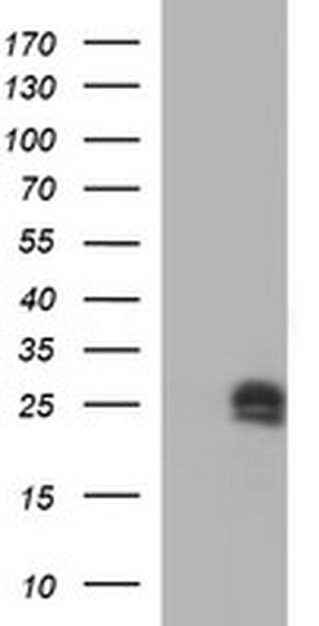 HPRT1 Antibody in Western Blot (WB)