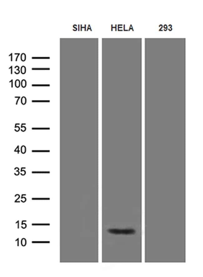 HPV18 E7 Antibody in Western Blot (WB)