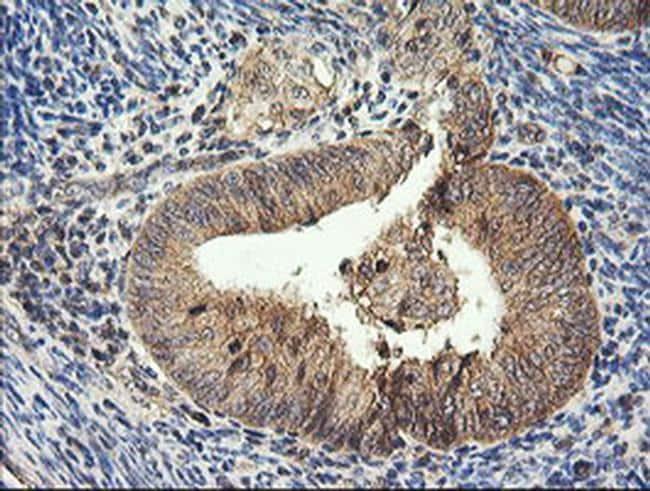 HRAS Antibody in Immunohistochemistry (Paraffin) (IHC (P))