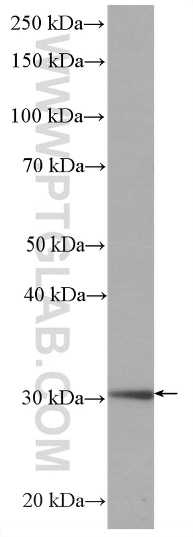 MTAP Antibody in Western Blot (WB)