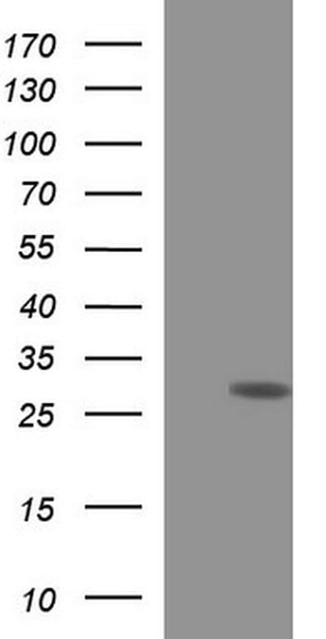 HSCB Antibody in Western Blot (WB)