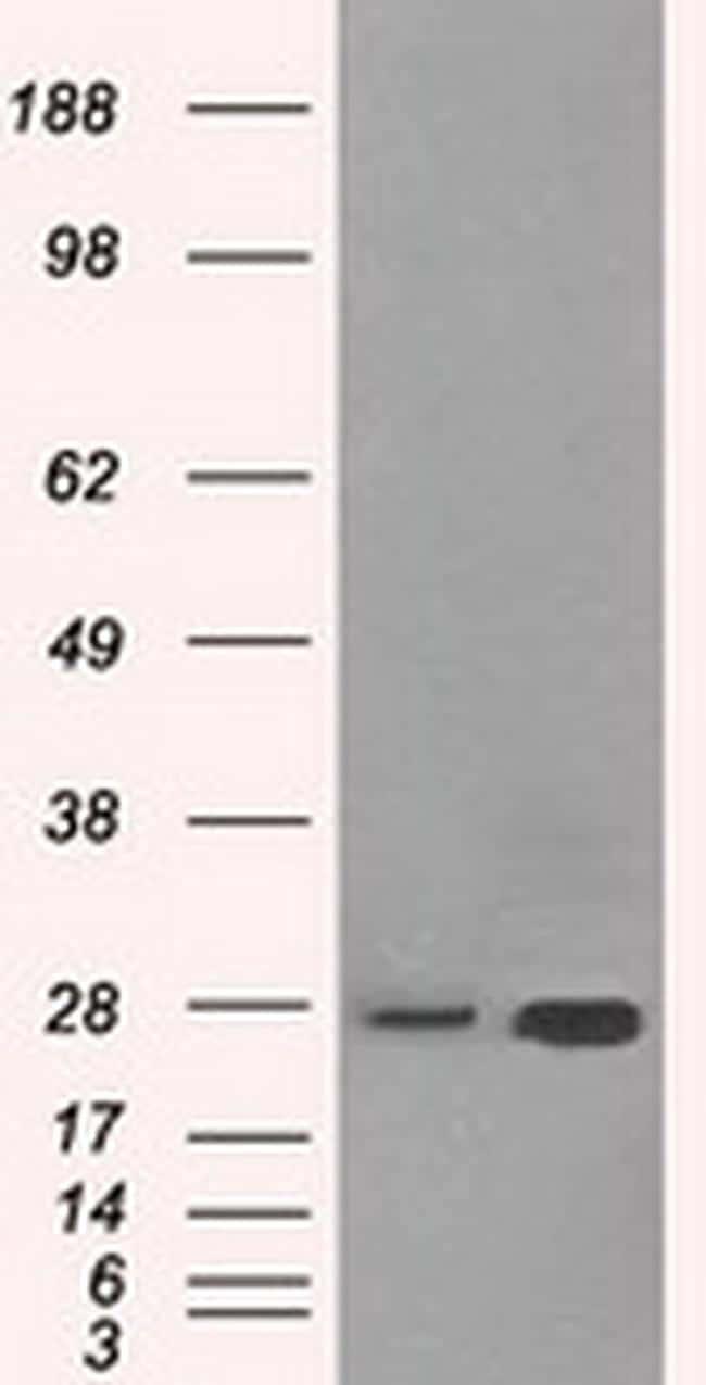 HSD17B10 Antibody in Western Blot (WB)