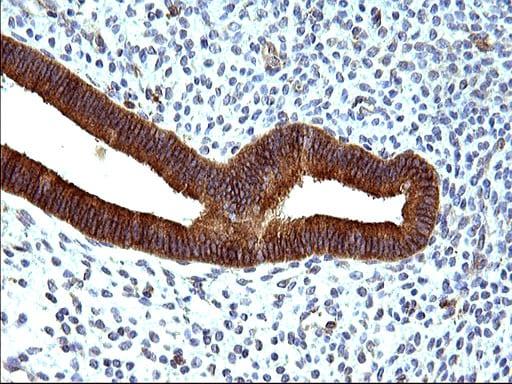 HSD17B4 Antibody in Immunohistochemistry (Paraffin) (IHC (P))
