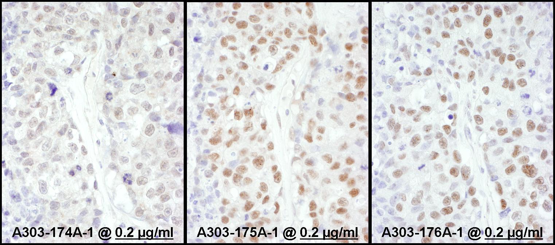 HSF1 Antibody in Immunohistochemistry (IHC)