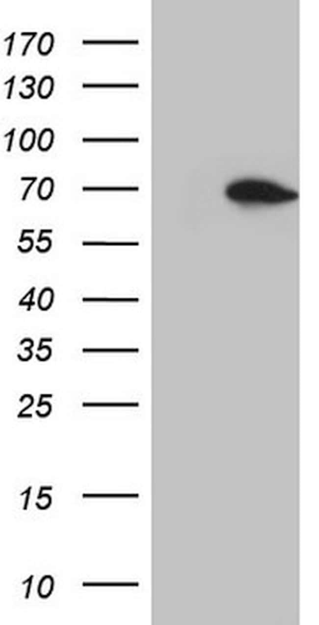 HSF2 Antibody in Western Blot (WB)