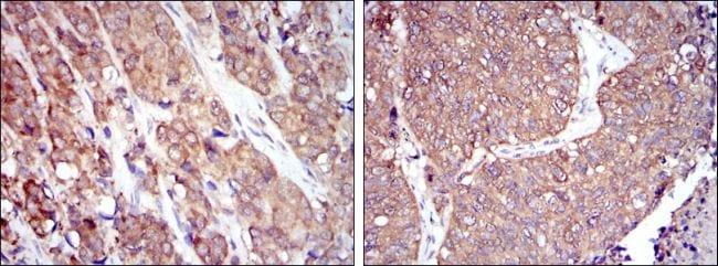 HSP90 beta Antibody in Immunohistochemistry (IHC)