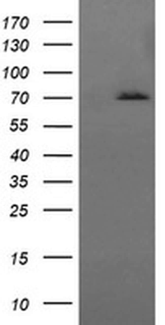 HSPA8 Antibody in Western Blot (WB)