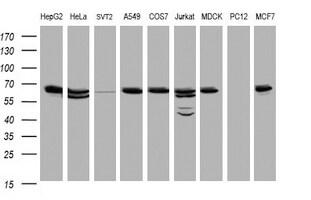 Hsp60 (HSPD1) Antibody in Western Blot (WB)
