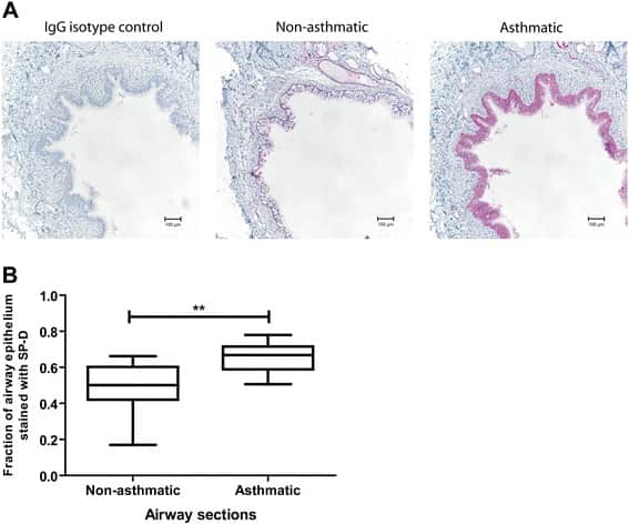 SFTPD Antibody