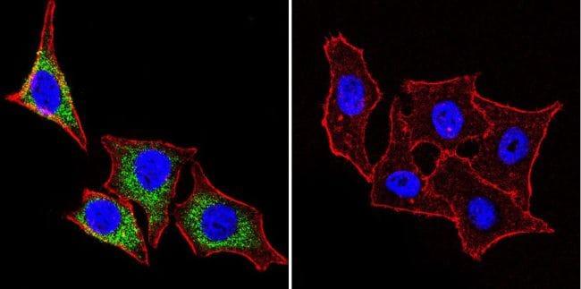 HSP27 Antibody in Immunocytochemistry (ICC/IF)