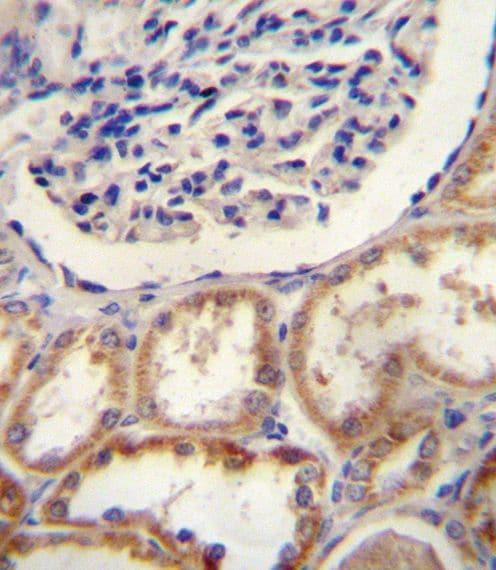 HTRA1 Antibody in Immunohistochemistry (IHC)