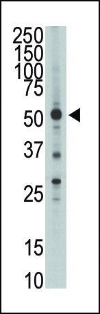 HTRA1 Antibody in Western Blot (WB)