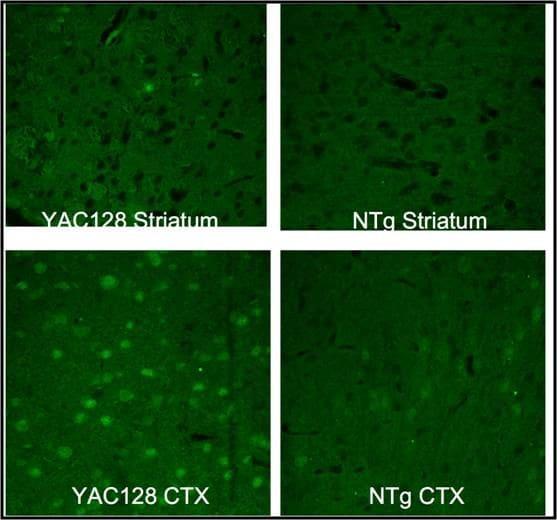 Huntingtin Antibody in Immunohistochemistry (IHC)