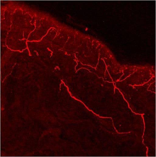 TRPV1 Antibody in Immunohistochemistry (IHC)