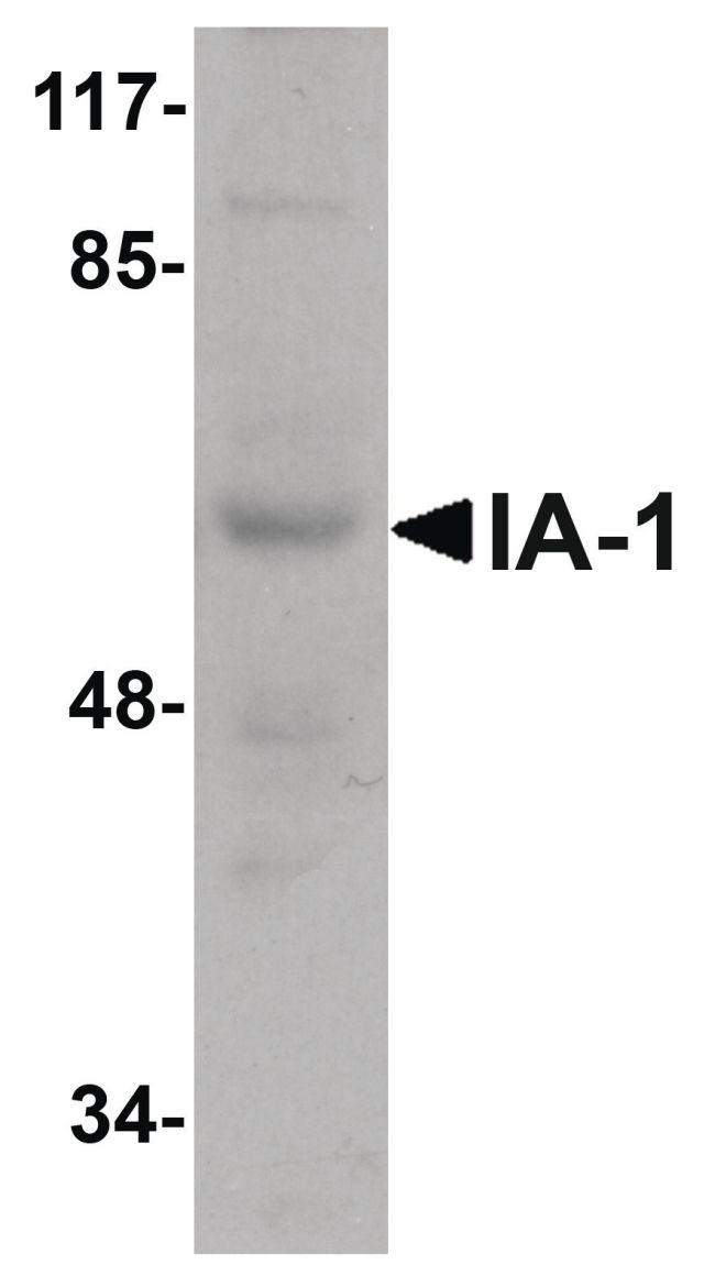 IA-1 Antibody in Western Blot (WB)