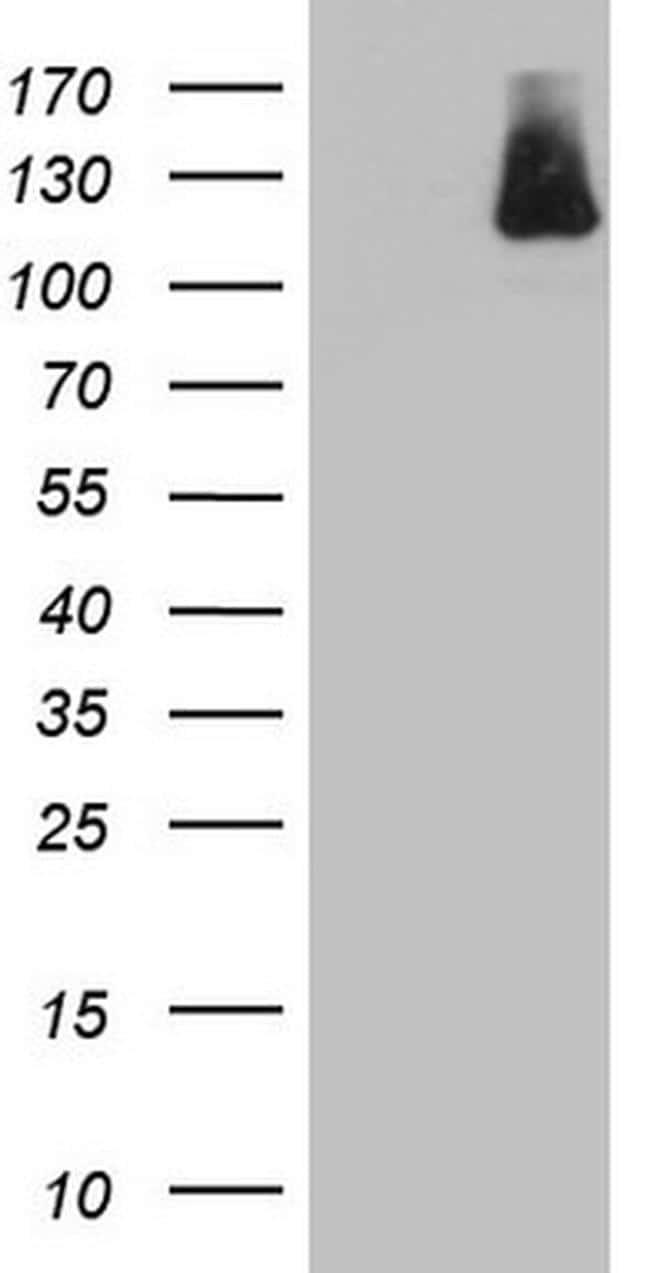 IFIH1 Antibody in Western Blot (WB)