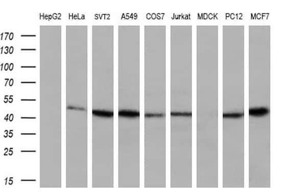 IFT57 Antibody in Western Blot (WB)