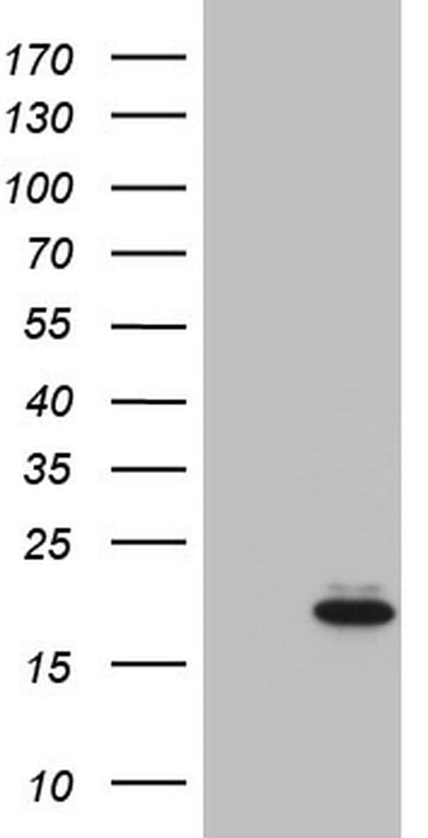IGF1 Antibody in Western Blot (WB)