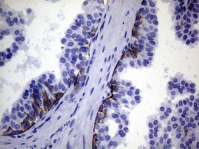 IKBKE Antibody in Immunohistochemistry (Paraffin) (IHC (P))