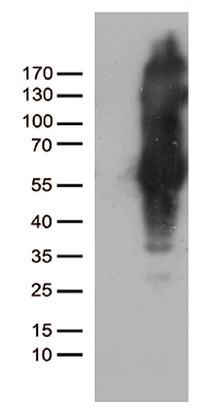 IKBKG Antibody in Western Blot (WB)