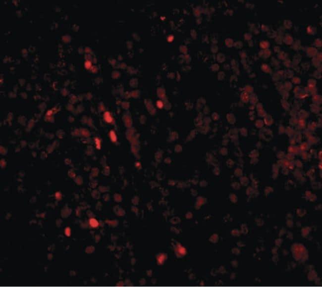 IL-33 Antibody in Immunohistochemistry (IHC)