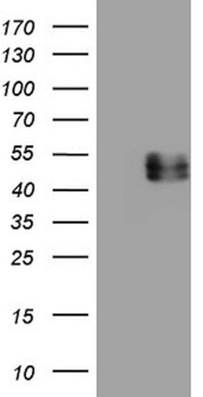 IL12B Antibody in Western Blot (WB)