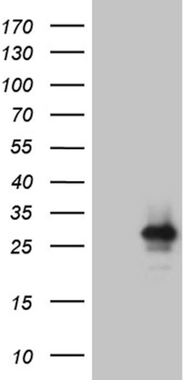 IL24 Antibody in Western Blot (WB)