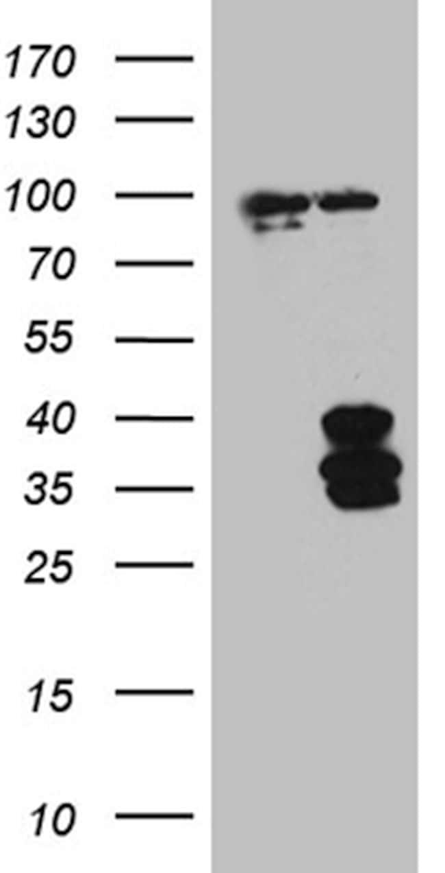 IL34 Antibody in Western Blot (WB)