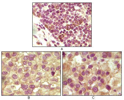 INHA Antibody in Immunohistochemistry (IHC)