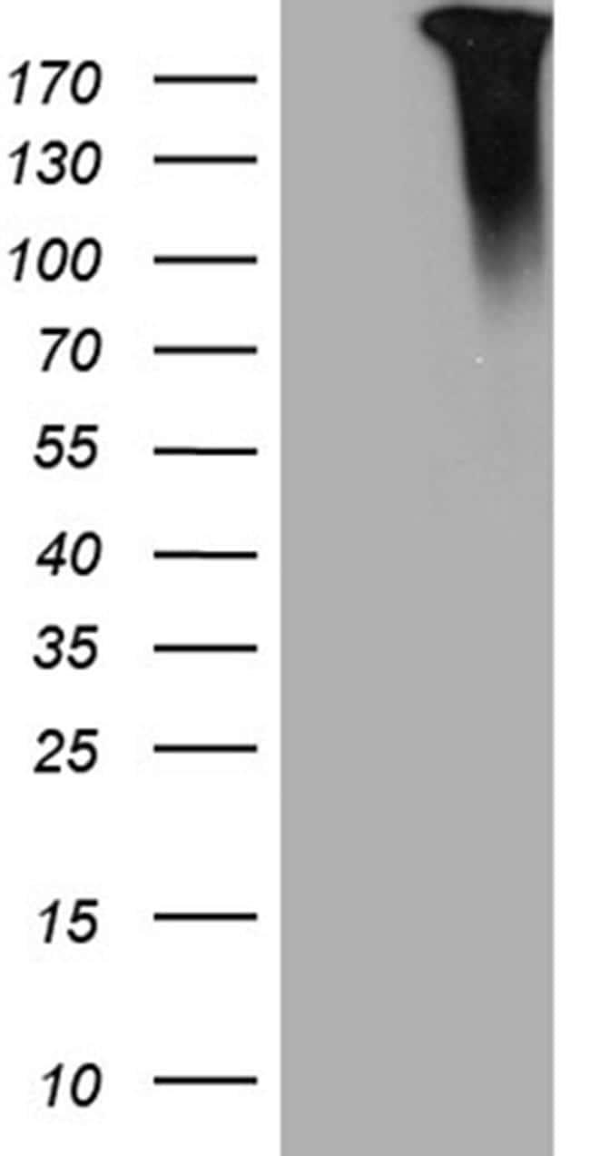 JAK2 Antibody in Western Blot (WB)