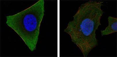 JAK3 Antibody in Immunofluorescence (IF)