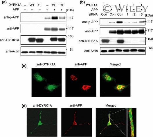 Amyloid Precursor Protein Antibody