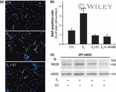 NMDAR2B Antibody