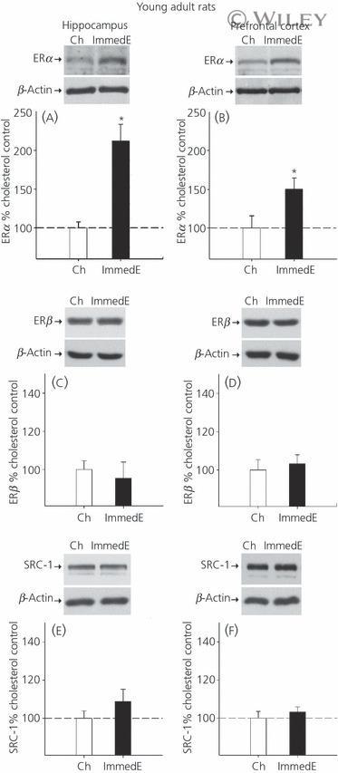 Estrogen Receptor beta Antibody