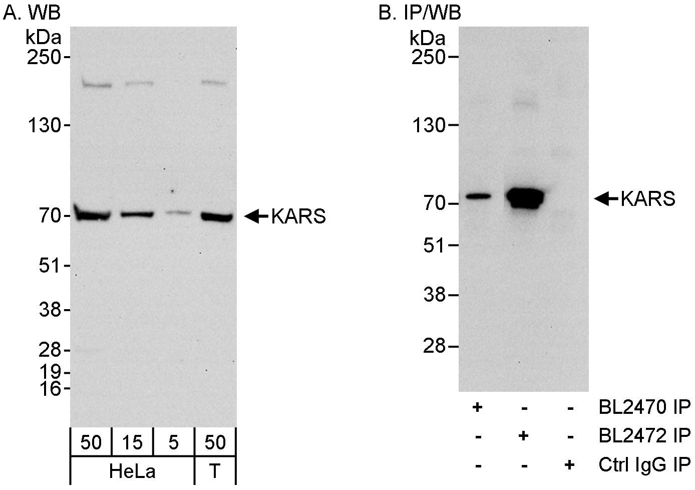 KARS Antibody in Western Blot (WB)